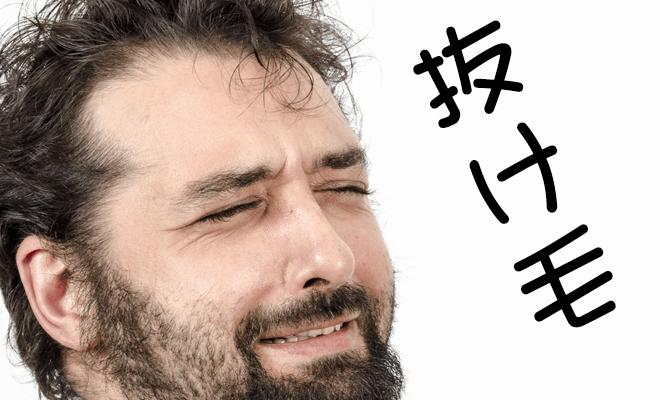 抜け毛-3