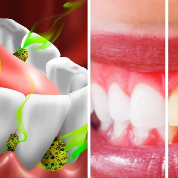 口内細菌をやっつけ、口臭を防ぐ10の方法