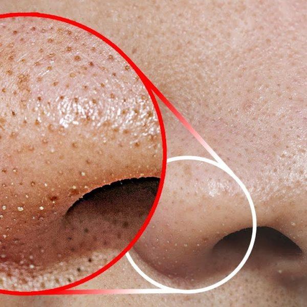 これをやってあなたの鼻の角栓をキレイに除去!