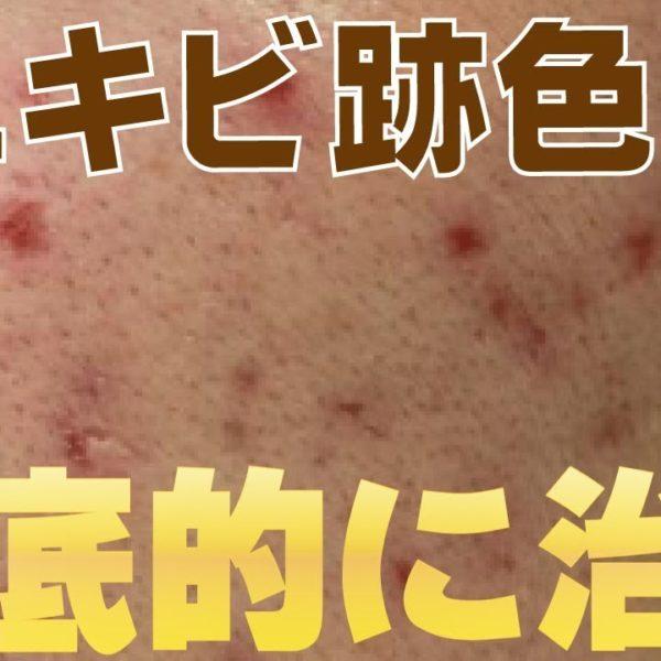 【美容】ニキビ跡で黒・茶色・色素沈着してしまった肌を徹底的に治す方法教えます。